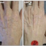 Liver Spots Treated with Laser