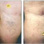Spider Veins Treated with Sclerotherapy