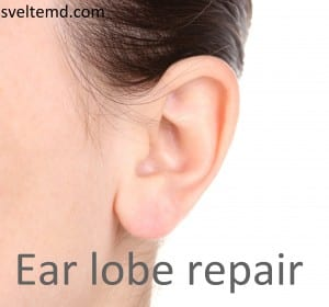 Orlando ear lobe repair